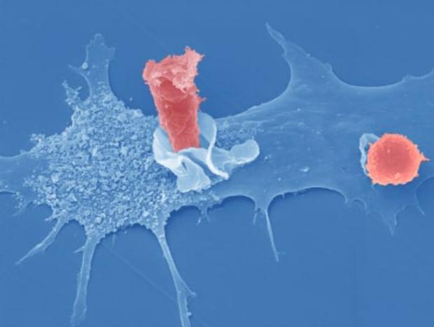 linfociti.png